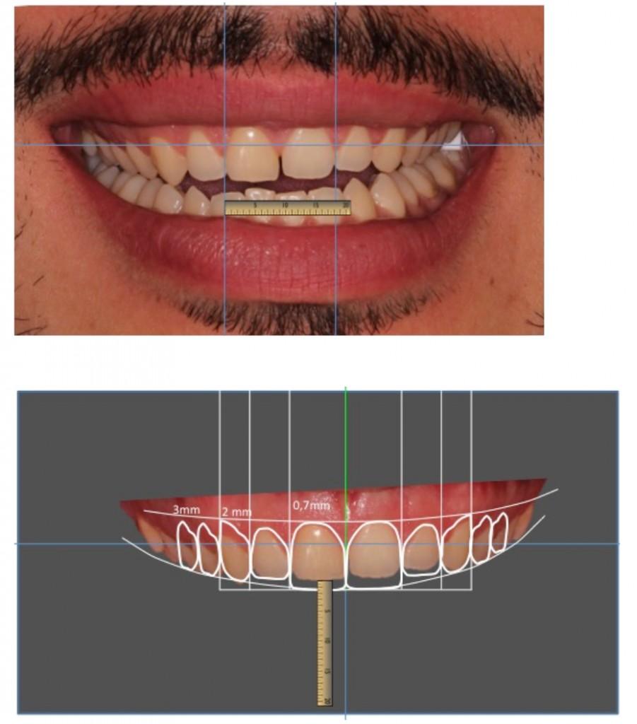 digital-smile-design2