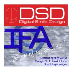 digital-smile-design3
